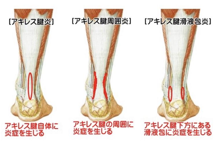が 寝起き 痛い 足首 足がだるいし痛い8つの原因!病気の可能性も・・!?
